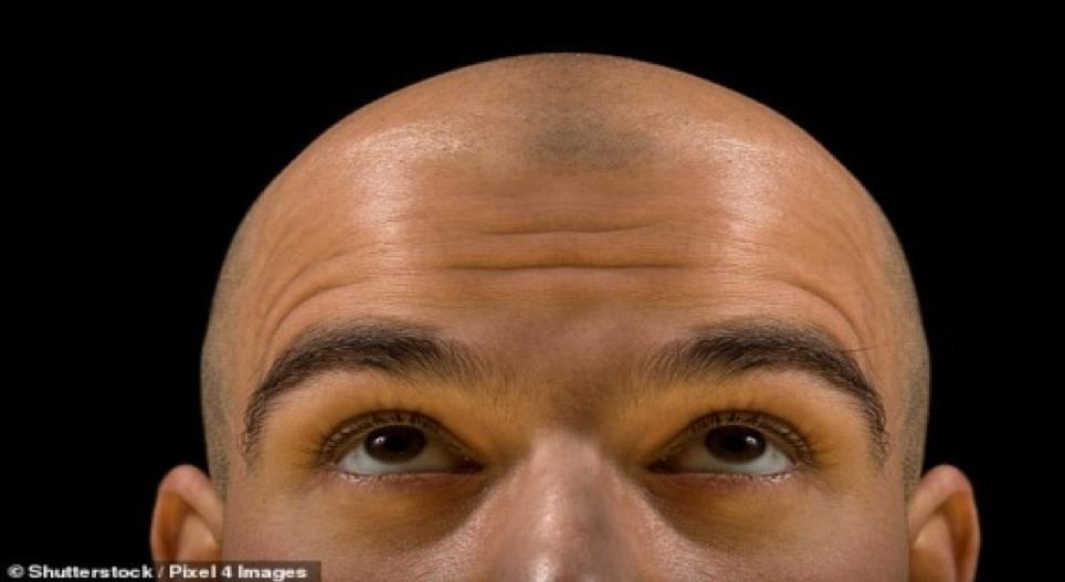Ngân hàng tóc đầu tiên trên thế giới: 200 triệu đồng để cấy tóc dành cho người hói