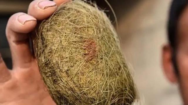 Trở thành tỷ phú nhờ lợn nhà nuôi có sỏi mật chữa bách bệnh